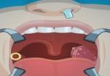 لعبة طبيب زراعة الاسنان